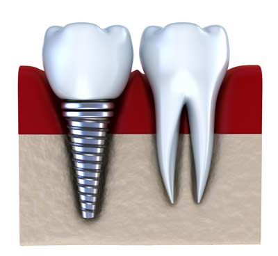 bigstock-Dental-implant-21445070